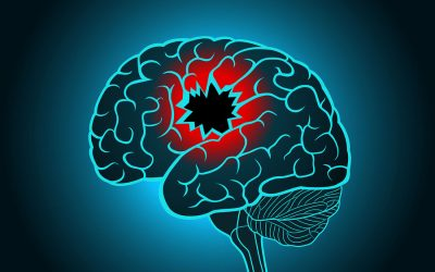Stroke Now Ranks as the Fifth Leading Cause of Death in U.S.